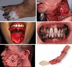 Nicotine Lead Cancer